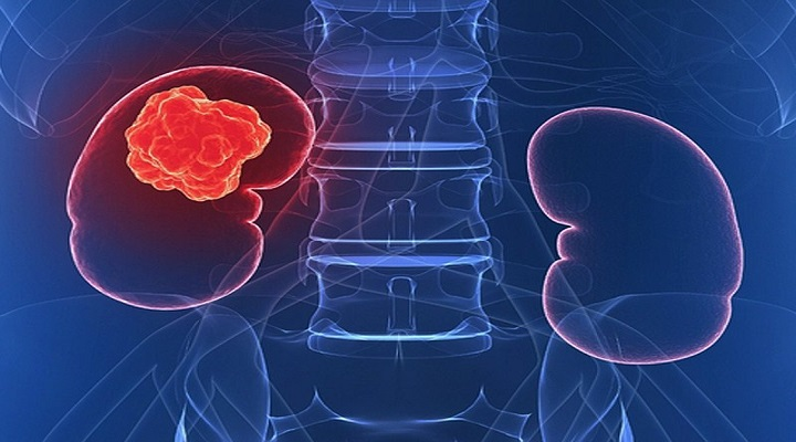Transformation in Treatment of Renal Cell Carcinoma Research Report : KenResearch