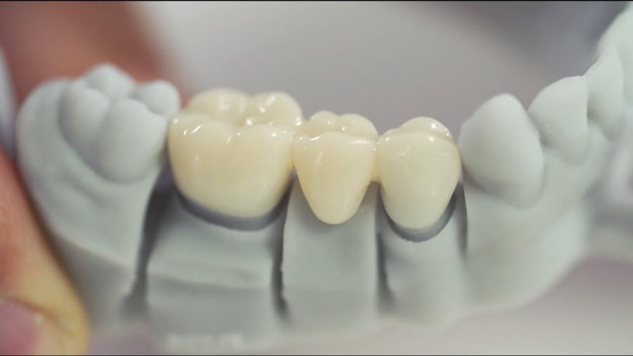 Dynamic Landscape Of The Global Dental 3D Printing Market Outlook: KenResearch