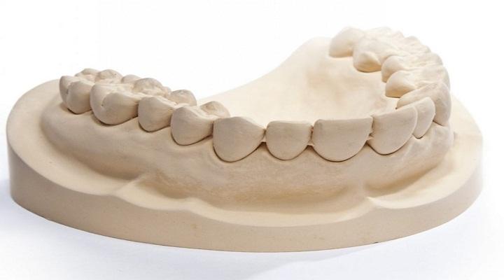 Increasing Landscape Of The Global Dental Gypsum Market Outlook: KenResearch