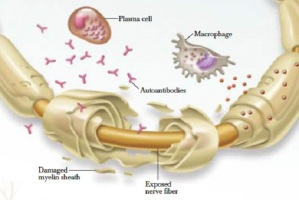 Global Chronic Inflammatory Demyelinating Polyneuropathy (CIDP) Market