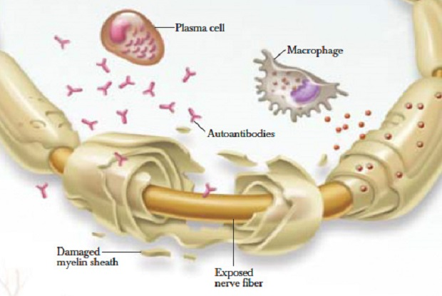 Growth in Prevalence of Autoimmune Diseases Estimated to Drive Global Chronic Inflammatory Demyelinating Polyneuropathy (CIDP) Market: Ken Research