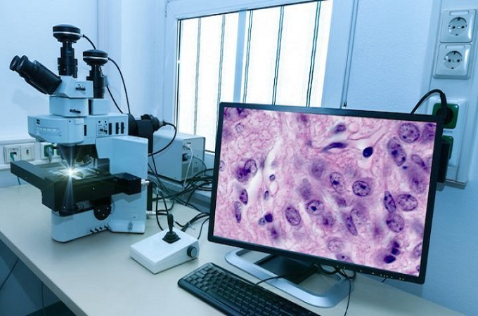 Rise in Prevalence of Chronic Diseases Estimated to Drive Global Digital Pathology Market over the Forecast Period: Ken Research