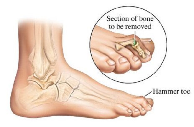 Increase in a Prevalence of Arthritis Expected to Drive Global Hammertoe Market over the Forecast Period: KenResearch