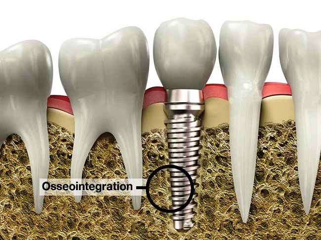 Global Osseointegration Implants Market Research Report: KenResearch