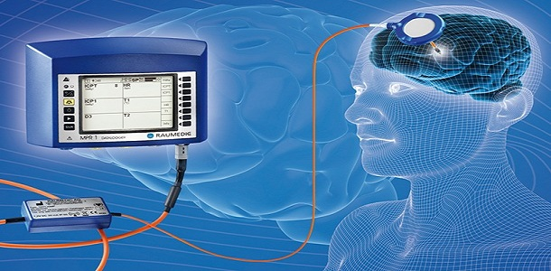 Rise in Prevalence of Traumatic Brain Injuries expected to drive Global Intracranial Pressure (ICP) monitoring market: KenResearch