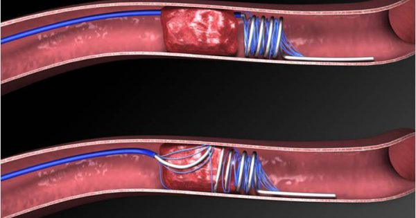 U.S. Thrombectomy Devices Market Research Report and Outlook: KenResearch