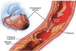 Global Myocardial Ischemia Market