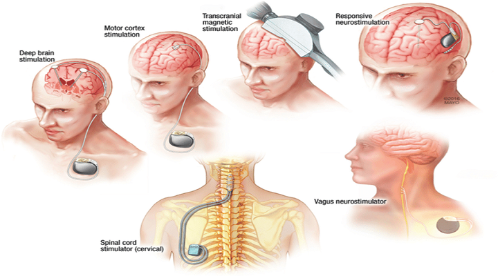 Neuromodulation Devices (Neurology) – Global Market Analysis and Forecast Model: KenResearch