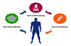 Global Autologous Cell Therapy Market