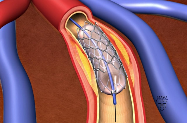 Rise in Prevalence of Coronary Heart Disease Expected to Drive Global Coronary Stent Market: KenResearch