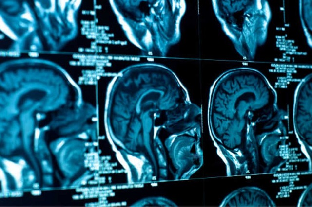 Intensifying Insights of Global Medical Imaging Outsourcing Market Outlook: Ken Research