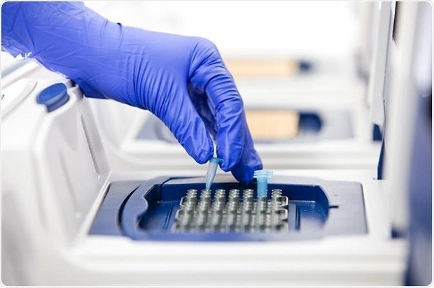 Rise in Incidence of Infectious Diseases Expected to Drive Global Polymerase Chain Reaction (PCR) And Real-time Polymerase Chain Reaction (PCR) market: KenResearch