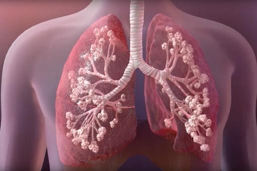 Improvement of the Healthcare Industry Boost the Cystic Fibrosis Therapeutics Industry Outlook: KenResearch