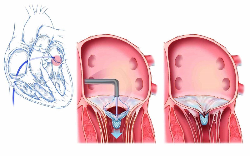 Increase in Prevalence of Valvular Heart Disease Expected to Drive Global Transcatheter Mitral Valve Repair and Replacement Market: KenResearch