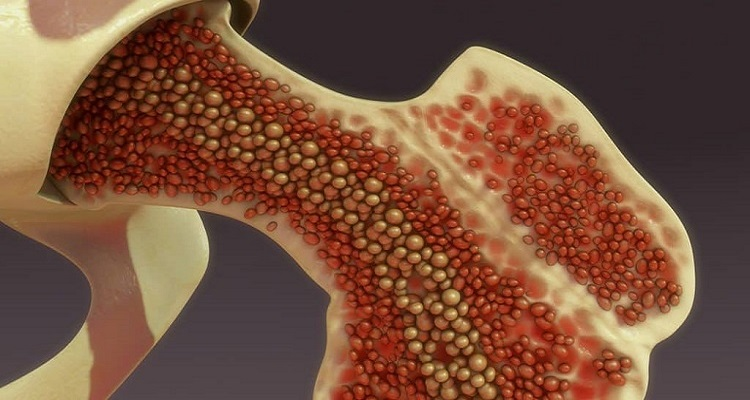 Global Bone Marrow Aspirate Concentrates Market Size 2021 By COVID-19 Impact on Industry Share, Growth, Investment Opportunities and Forecast 2027: KenResearch